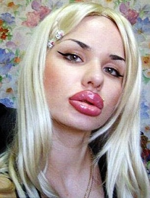 Pity, Big lips plastic surgery for