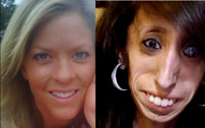 Melissa Newton (left); Dr. Knight's ideal dental assistant (right)