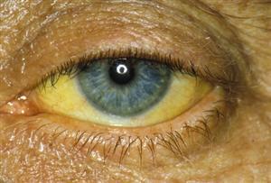 PRinc_rm_photo_of_jaundiced_eye