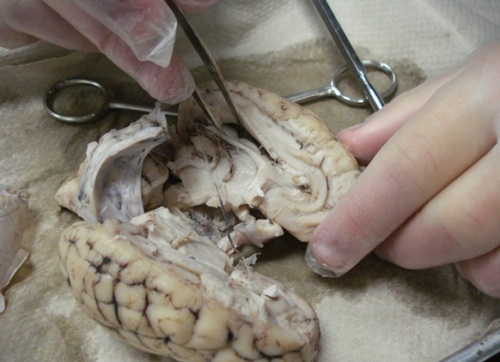 brain_dissect08