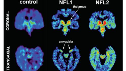 NFL brains