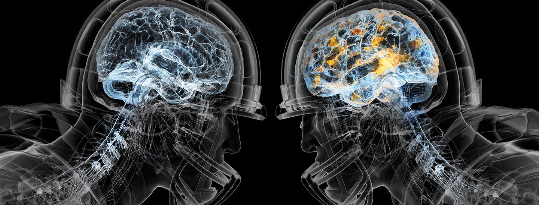 Brain Damage football